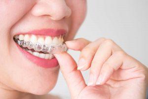 Knirschschiene gegen Zahnschmerzen